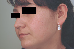 age spot removal los angeles before and after laser pictures