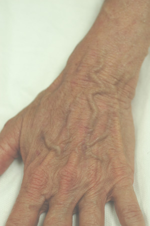 hand rejuvenation sun spots laser treatment
