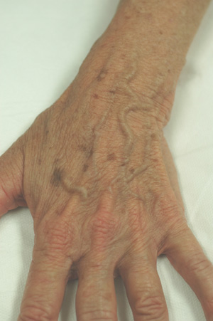 hand rejuvenation brown spots before and after pictures