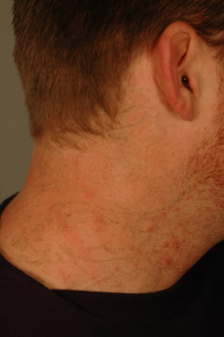 los angeles tattoo removal photo after laser treatment