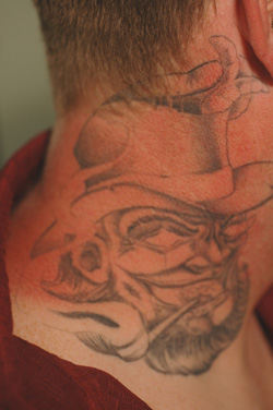 los angeles tattoo removal photo before laser treatment