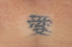 laser tattoo removal los angeles before picture