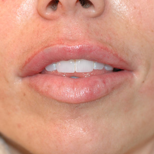 uneven lips after restylane