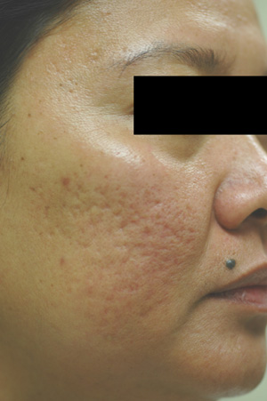 los angeles acne scar removal laser resurfacing before and after pictures