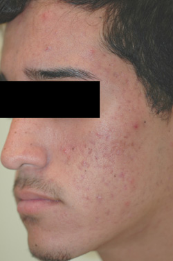 acne laser treatments los angeles before and after pictures