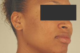 los angeles laser acne treatment before and after pictures