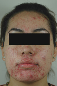 blue light treatment for acne before picture