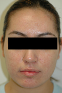 blue light treatment for acne after picture