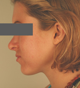 oral birth control for acne before and after pictures