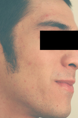 laser acne treatments after picture los angeles