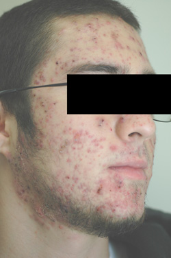 laser acne treatments before picture los angeles