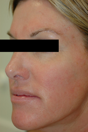 irritation acne rosacea after pictures