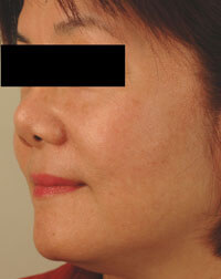 laser age spot removal after