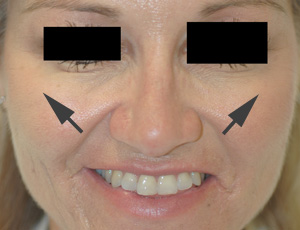 anaheim botox injections before and after pictures