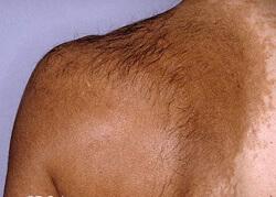 becker's nevi birthmark