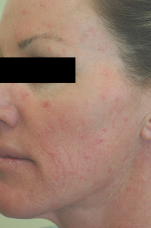 irritation acne rosacea before pictures