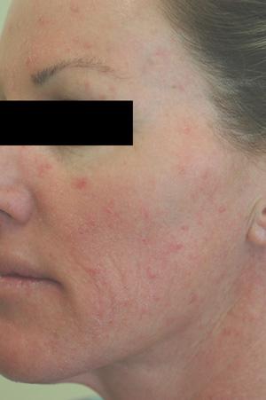 irritation acne rosacea before pictures