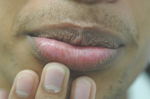 brown spots on the lips laser treatments after