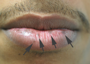 brown spots on the lips laser treatments before
