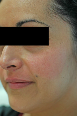 los angeles melasma after pictures