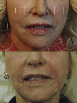 deep fractionated laser resurfacing