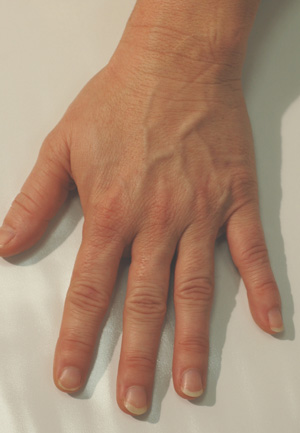 hand rejuvenation before and after pictures juvederm