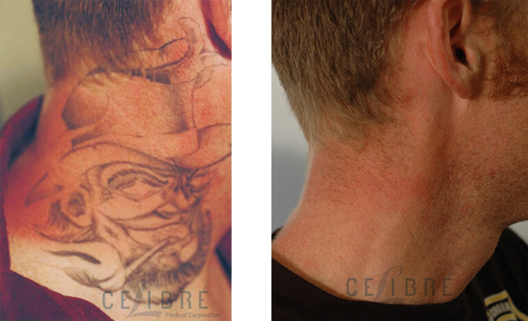 How does laser tattoo removal work for Does tattoo removal cream work