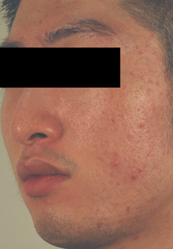 large pores los angeles before and after pictures
