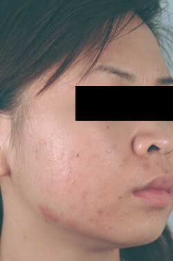 orange county california acne laser treatments before and after photos