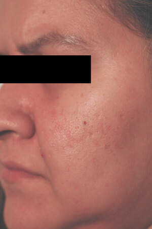 carson california laser resurfacing before pictures