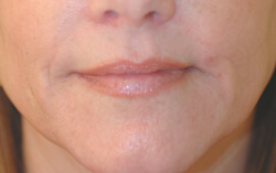 los angeles botox for smoker's lines