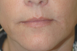 los angeles botox for smoker's lines before and after pictures