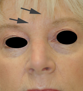 los alamitos Botox before and after pictures