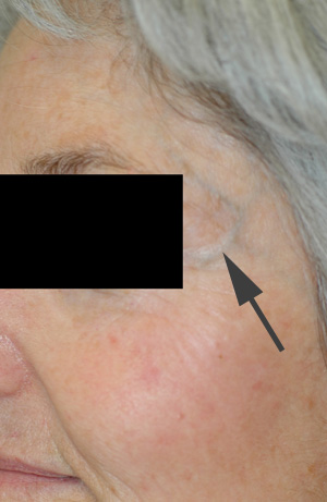 los angeles liver spot removal before and after pictures