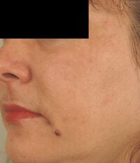 what causes melasma before and after photos