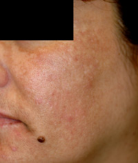 melasma cause before and after photos