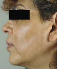 sun spots and melasma before and after photos los angeles