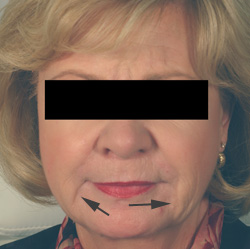 oral commissures chin rejuvenation restylane los angeles before and after pictures