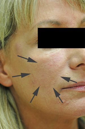 los angeles cheek augmentation with perlane before and after pictures