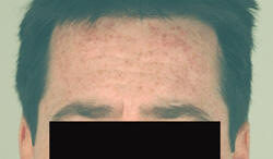Los Angeles laser sun spot removal before and after pictures