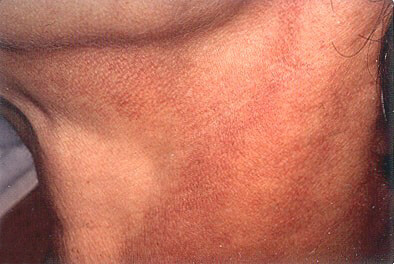 poikiloderma laser treatment orange county california