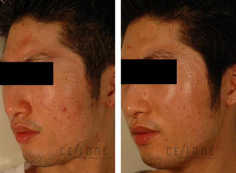 How Do Lasers Treat Large Pores