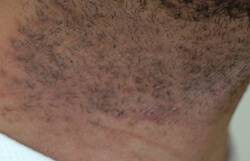 razor bumps laser hair removal before and after pictures