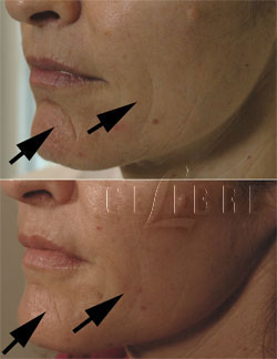 restylane for shaping the chin