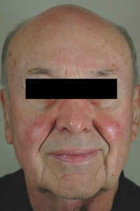 rosacea laser treatments los angeles before and after pictures
