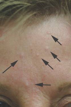 sebaceous hyplerplasia treatment before and after pictures