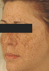 long beach california age spot removal before and after pictures