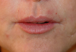 smokers lines botox restylane after
