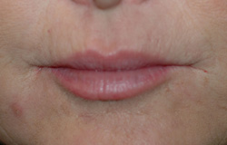 smokers lines botox restylane before