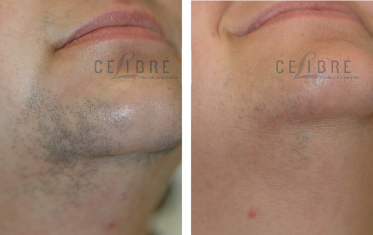 What S The Best Laser For Hair Removal